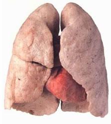 Il polmone di Alex Del Piero