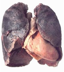 Il polmone di Humphrey Bogart